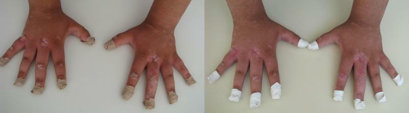psoriazis maini, tratament prin crioterapie (criosauna)