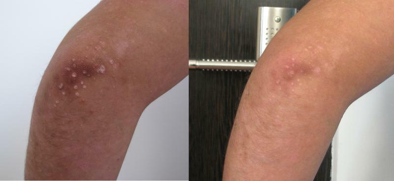 Psoriazis cot sting, tratament prin crioterapie (criosauna)