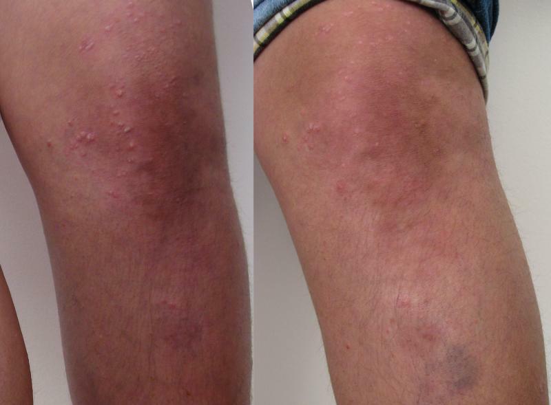 Genunchi sting, tratament prin crioterapie (criosauna)