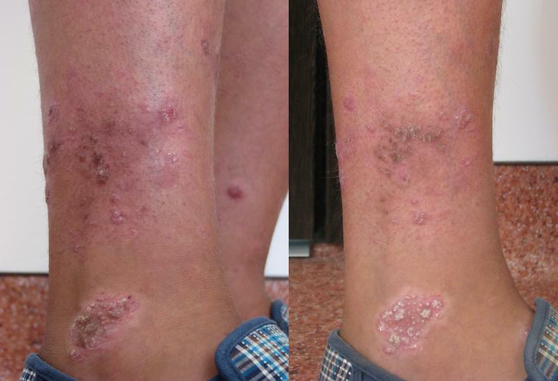 Glezna dreapta exterior, tratament prin crioterapie (criosauna)