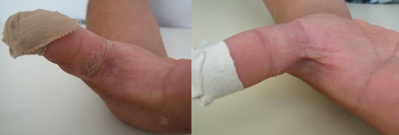 Mana dreapta interior, tratament prin crioterapie (criosauna)